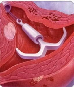 妇科真人上环手术视频_s.延迟放置的效果图片